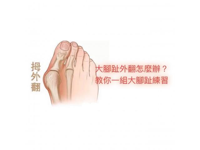 大腳趾外翻怎麼辦?教你一組大腳趾練習